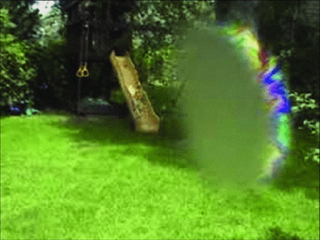 Imagen: Aparición de una forma común de aura visual típica de la migraña (Fotografía cortesía de Poojitha Mamindla, PharmD)