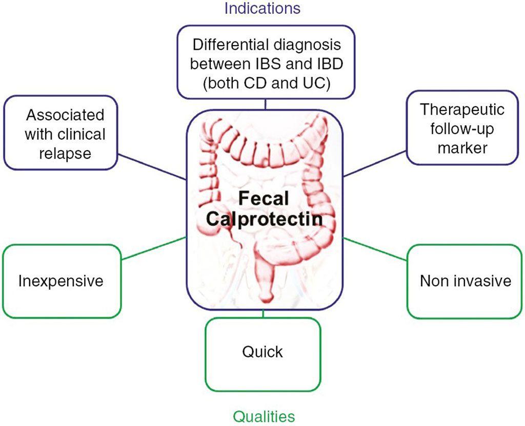 Imagen: Representación esquemática de las indicaciones de calprotectina en las prácticas clínicas y principales ventajas (Fotografía cortesía del Hôpital Beaujon)