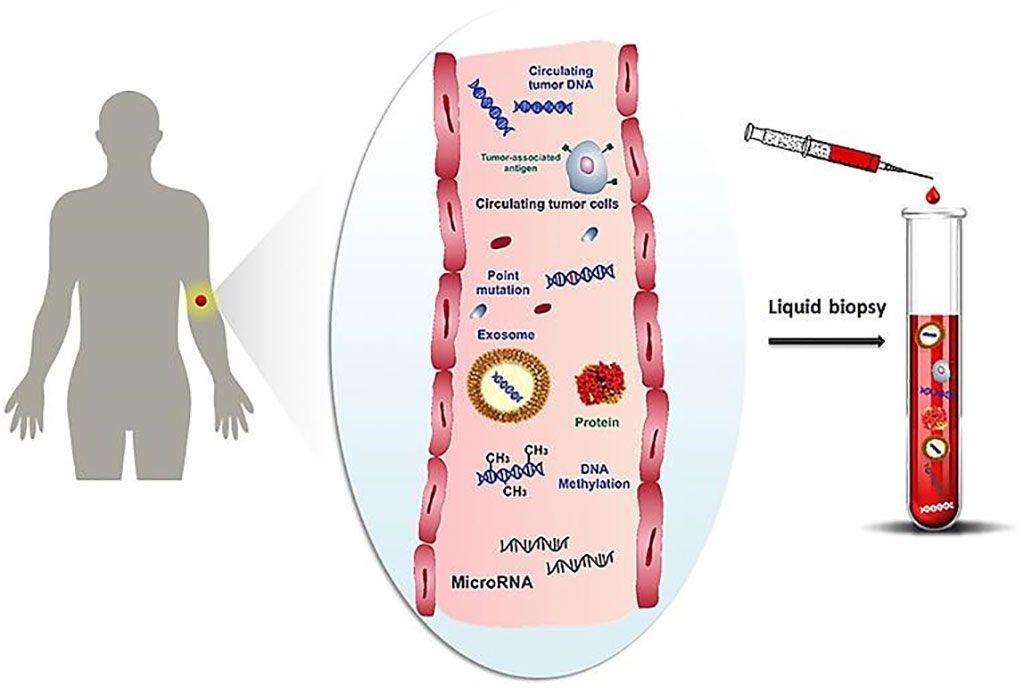 Imagen: Representación esquemática de biomoléculas relacionadas con el cáncer, como células, proteínas, ácidos nucleicos, miARN y microvesículas que circulan en el torrente sanguíneo y recolección de estos biomarcadores mediante biopsia líquida (Fotografía cortesía de la Universidad de Florencia)