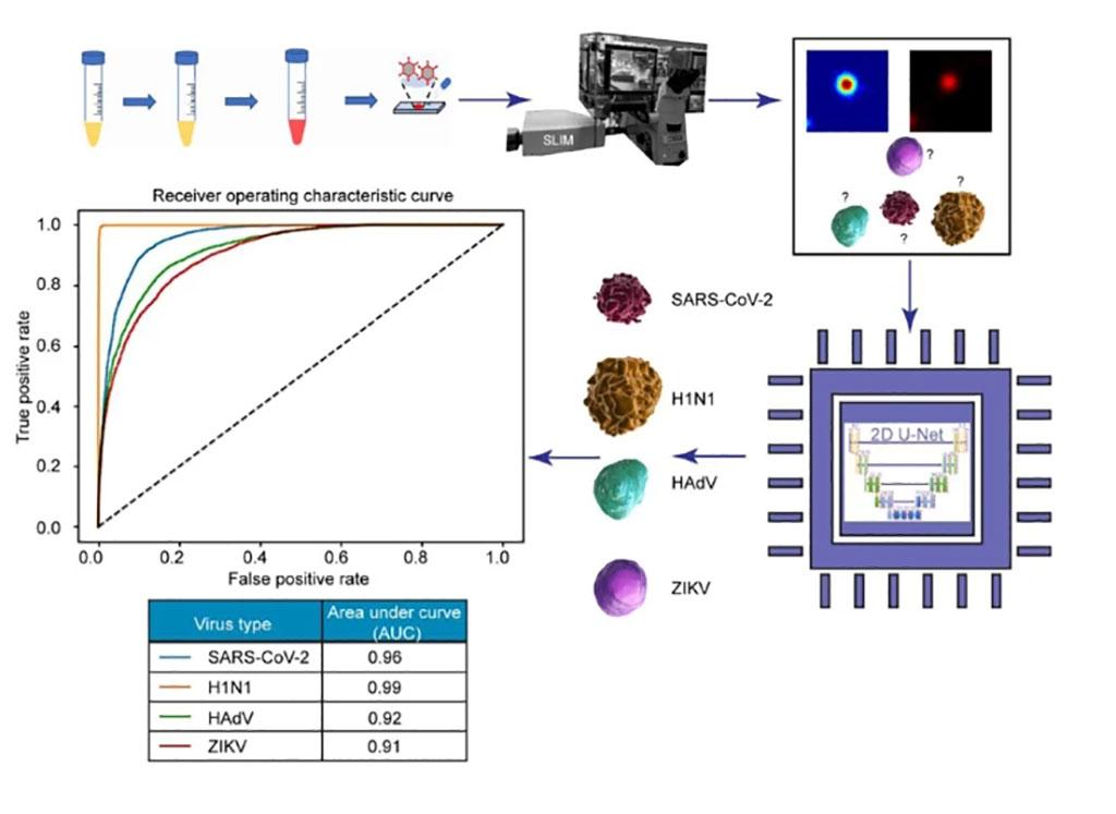 Imagen: La IA discernió entre cuatro partículas: SARS-CoV-2, H1N1, HAdV y ZIKV. El ensayo preclínico tuvo una tasa de éxito del 96% para la detección y clasificación del SARS-CoV-2 (Fotografía cortesía del Instituto Beckman de Ciencia y Tecnología Avanzadas)
