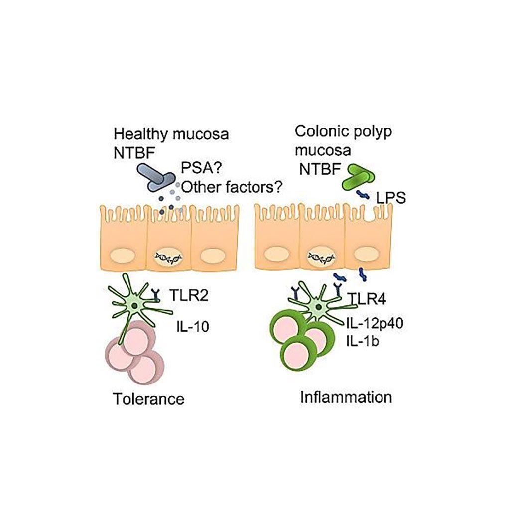 Imagen: Representación gráfica de la caracterización genómica y funcional de un simbionte mucoso involucrado en el cáncer colorrectal en estadio temprano (Fotografía cortesía de la Facultad de Medicina de la Universidad de Washington)