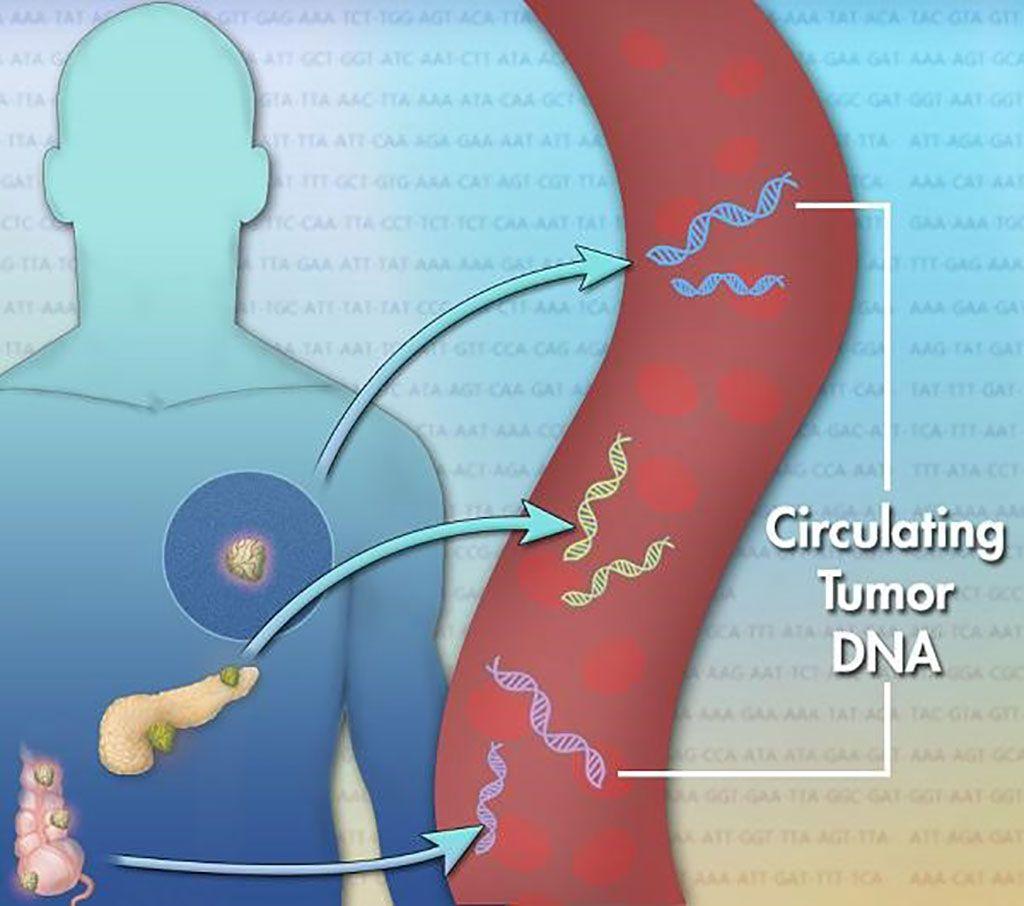 Imagen: El ADN tumoral circulante (ADNtc) se encuentra en el torrente sanguíneo y se refiere al ADN que proviene de células cancerosas y tumores. El ensayo LiquidHALLMARK, una prueba de biopsia líquida, rastrea los cambios en el ADNtc basados en el tratamiento (Fotografía cortesía de Jonathan Bailey, Instituto Nacional de Investigación del Genoma Humano)