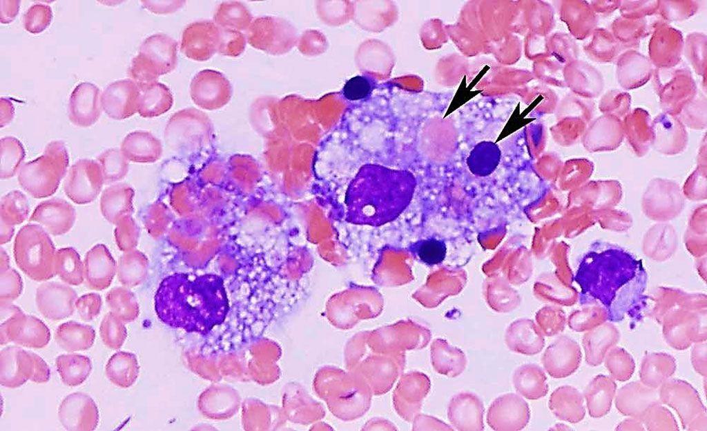 Imagen: Microfotografía de un frotis de médula ósea de un paciente con linfohistiocitosis hemofagocítica, que muestra macrófagos espumosos que engullen eritrocitos maduros y precursores (flecha) (Fotografía cortesía de Ismail Hader, MD, FACP)