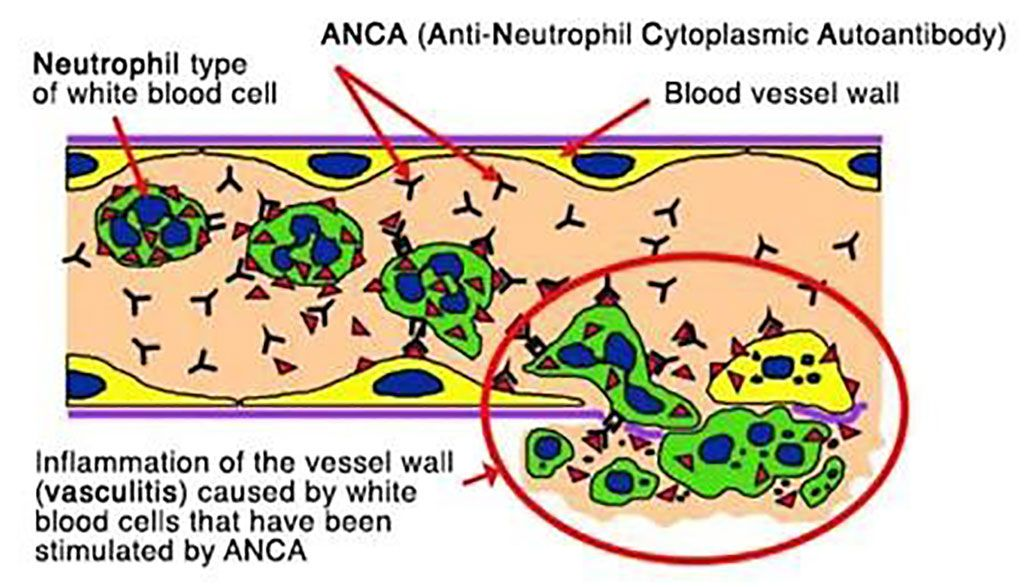 """Imagen: Diagrama esquemático que muestra la """"activación"""" de neutrófilos inducida por ANCA de anticuerpos anticitoplasma de neutrófilos que provocan inflamación de la pared de los vasos sanguíneos (Fotografía cortesía del Hospital de Addenbrooke)"""
