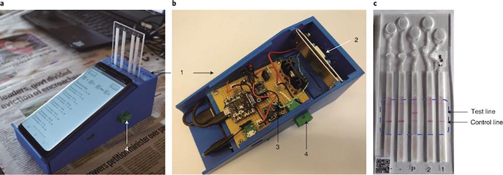 Imagen: Diagnóstico de ADN basado en teléfonos inteligentes para la detección de la malaria mediante el aprendizaje profundo, con el fin de apoyar las decisiones locales, y la tecnología de cadena de bloques para la seguridad (Fotografía cortesía de la Universidad de Glasgow)