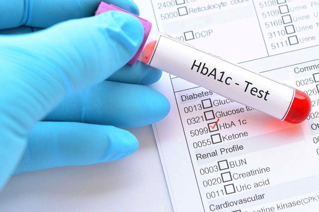 Imagen: Se ha informado la asociación entre la HbA1c al momento de la admisión y el riesgo posterior de eventos vasculares compuestos, que incluyen accidente cerebrovascular, infarto de miocardio y muerte vascular, en pacientes con accidente cerebrovascular isquémico agudo y diabetes (Fotografía cortesía de Diabetes.co.uk)