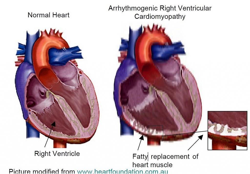 Imagen: La miocardiopatía arritmogénica del ventrículo derecho (ARVC) es causada por la acumulación de depósitos de grasa y tejido fibroso en el ventrículo derecho, la cámara del corazón que bombea sangre a los pulmones (Fotografía cortesía de la Fundación Nacional del Corazón de Australia).