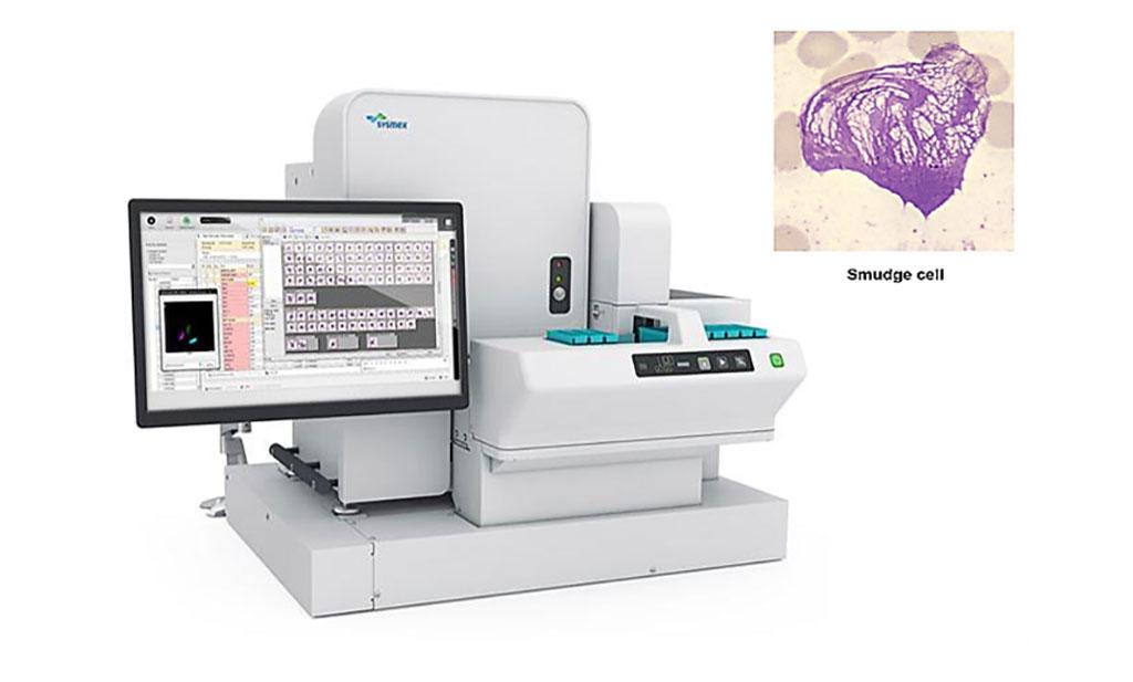Imagen: El Sysmex DI-60 es un sistema automatizado de análisis de imágenes de localización de células. Está conectado directamente a la pista del analizador y, por lo tanto, elimina la necesidad de intervención manual en el flujo de trabajo de hematología en el ciclo de imágenes (Fotografía cortesía de Sysmex Corporation)