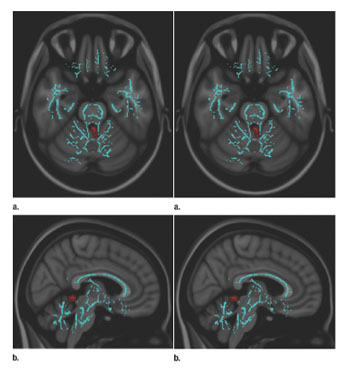 Cómo evaluar la lesión cerebral traumática leve