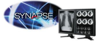 Imagen: El Synapse PACS (Fotografía cortesía de FujiFilm).