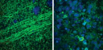 Imagen: Un cerebro normal (izquierda), donde se aprecian los axones bajo microscopía SRS, en comparación con el tejido desordenado de un tumor (derecha) cerebral (Fotografía cortesía de la U-M).
