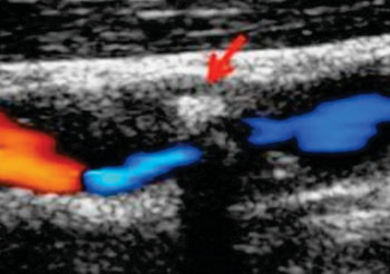 Imagen: Una evaluación preoperatoria de las carótidas, por ecografía (Fotografía cortesía de la Universidad de Umea).