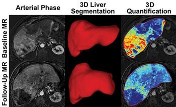 Imagen: Imágenes de hígado de antes y después del tratamiento. La imagen inferior derecha muestra que menos cáncer es visible después del tratamiento (Fotografía cortesía de la RSNA).