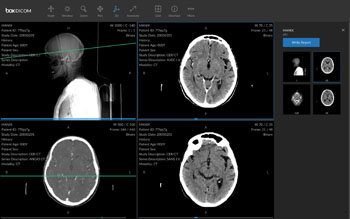 Imagen: El visor DICOM para rayos X, tomografía computarizada o resonancia magnética, ultrasonidos y mamografías (Fotografía cortesía de Box).
