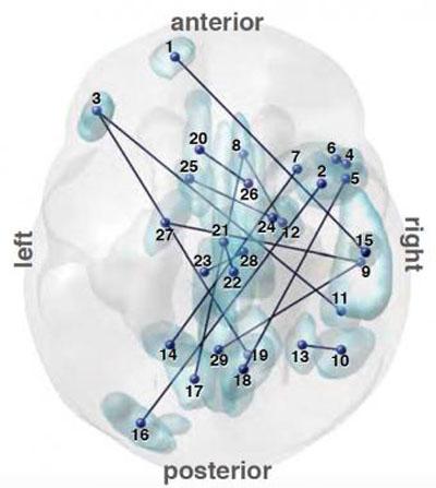 Imagen: Un mapa del cerebro ayuda a diferenciar a los pacientes diagnosticados con TEA (Fotografía cortesía de Nature Communications).