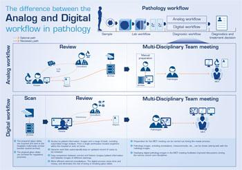 Imagen: Un gráfico que muestra la diferencia entre los flujos de trabajo digital y análogo en Patología (Fotografía cortesía de Sectra).