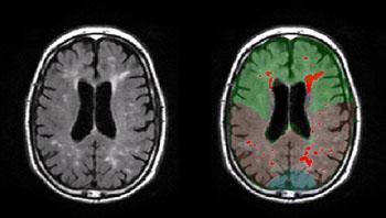 Imagen: La WMH en el cerebro de pacientes con enfermedad de Alzheimer (Fotografía cortesía de Adam Brickman/Universidad de Columbia).