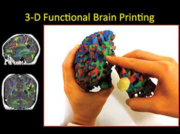 Imagen: Imprimir una copia en 3D del cerebro es una herramienta educativa útil para las comunicaciones entre los radiólogos y los pacientes con tumores cerebrales (Fotografía cortesía de la RSNA).