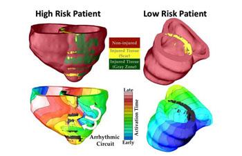 Imagen: El gráfico muestra cómo se utilizó el modelo de computador VARP 3D para clasificar a los pacientes con riesgo alto y con riesgo bajo de sufrir arritmia cardíaca (Fotografía cortesía de Royce Faddis/JHU).