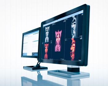 Imagen: La solución de gestión de imágenes empresariales, Sectra (Fotografía cortesía de Sectra).