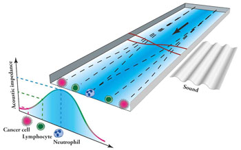 Imagen: La nueva tecnología isoacústica de ultrasonido podría ayudar a aumentar el conocimiento acerca de la propagación de las células cancerosas y la metástasis (Fotografía cortesía de Nature Communications y la Universidad de Lund).