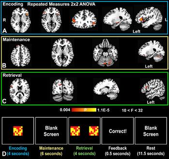 Imagen: Los resultados de un estudio novedoso que investiga los efectos de azul de metileno sobre la memoria a corto plazo (Foto cortesía de la RSNA).