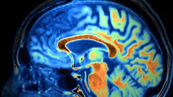 Imagen: Una imagen de resonancia magnética que muestra la disminución del tamaño de los lóbulos frontal y temporal, indicativos de demencia (Fotografía cortesía de SPL).