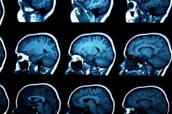 Imagen: Exámenes cerebrales: Autismo, TDAH y el TOC tienen síntomas comunes y están unidos por algunos de los mismos genes, pero han sido estudiado como trastornos separados (Fotografía cortesía de Fotolia).