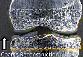 Imagen: La reconstrucción con imágenes de una articulación utilizando CBCT/CMOS (Fotografía cortesía de la Universidad Johns Hopkins).