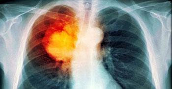 Imagen: Una imagen de TEP del cáncer de pulmón (Fotografía cortesía de TDMU).
