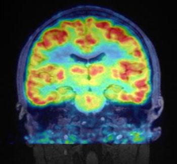 Imagen: Una imagen RM-TEP del cerebro humano utilizando Martinostat (Fotografía cortesía de NMR).