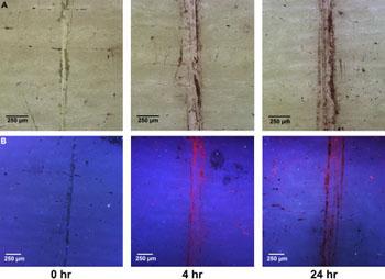 Imagen: Hueso bovino microdañado a la luz polarizada (A), y después de haber sido sumergido en una solución acuosa de AuNP (B) (Fotografía cortesía del Trinity College).