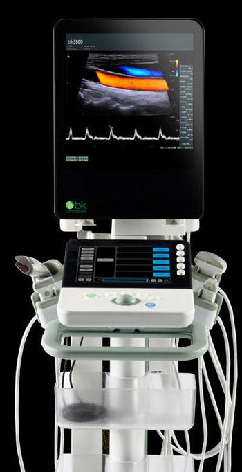 Imagen: El nuevo sistema de ultrasonido bk3500, diseñado para uso en los servicios de urgencias (Fotografía cortesía de Analogic).