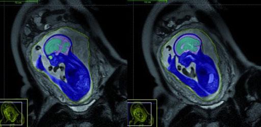 Imagen: Un ejemplo de un examen de resonancia magnética (RM) de un feto (Fotografía cortesía de Action Medical Research).