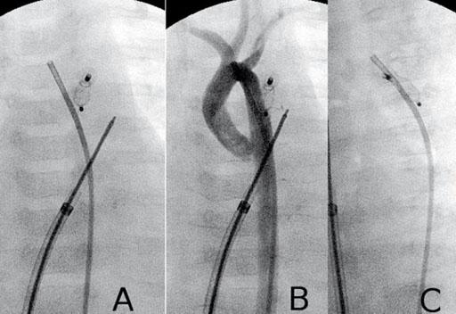 Imagen: Un cierre de un Ductus Arteriosus Patente (PDA) en un bebé (Fotografía cortesía del Instituto de Cardiología Cedars-Sinaí).