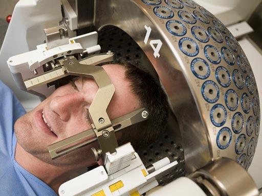 Imagen: Un paciente a quien le practican una SRS posterior a una cirugía del cerebro (Fotografía cortesía de DioMedia).