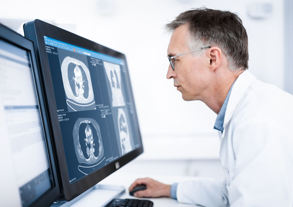 Imagen: Un clínico usando una estación de trabajo PACS (Fotografía cortesía de Sectra).