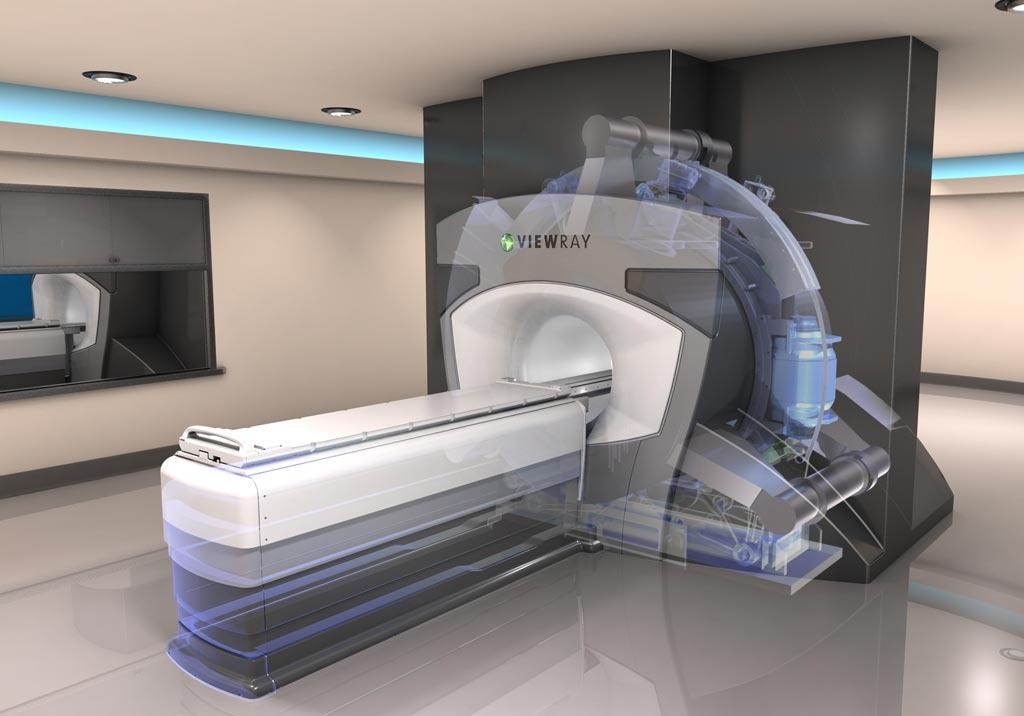Imagen: El sistema de radioterapia MRIdian Linac (Fotografía cortesía de ViewRay).
