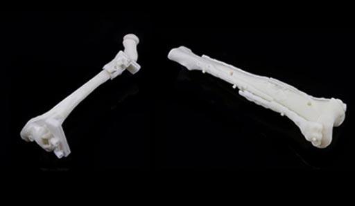 Imagen: Dos guías de osteotomía del radio y del cúbito, específicos para el paciente, impresas en 3D para la planificación de la cirugía en niños (Fotografía cortesía de Materialise).
