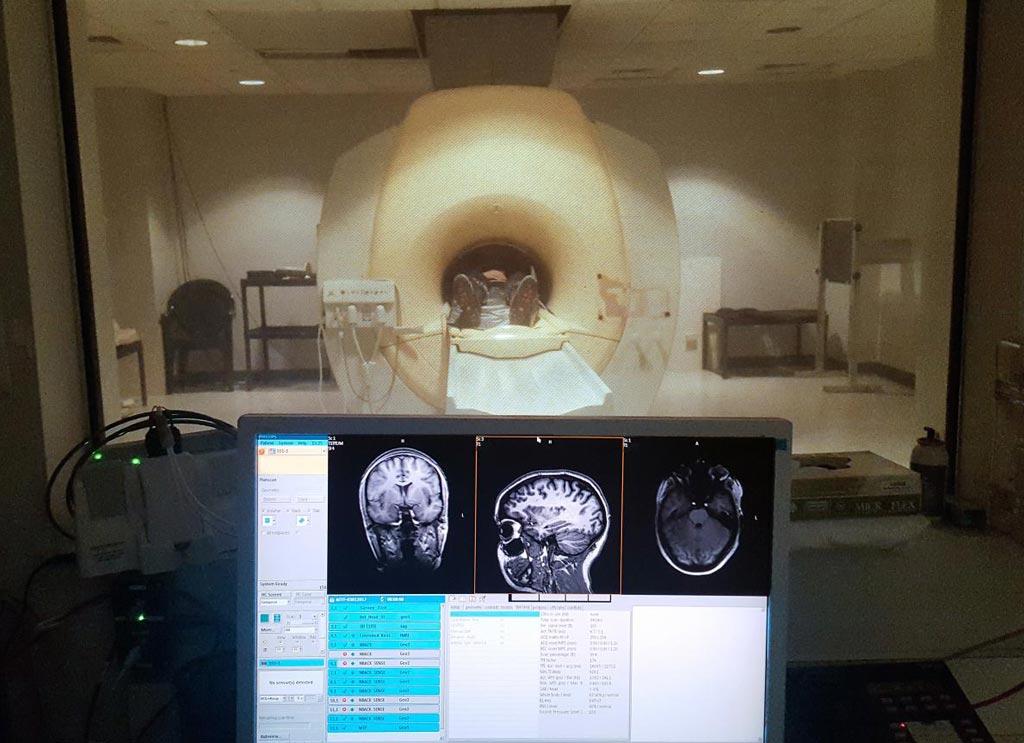 Imagen: Uno de los participantes en un escáner de resonancia magnética durante el estudio (Fotografía cortesía del Centro de Imagenología Biomedica de la Facultad de Medicina de la Universidad de Boston).