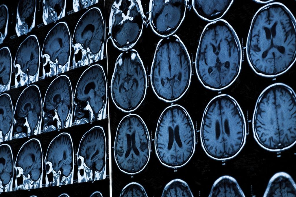 Imagen: Un nuevo estudio sugiere que los exámenes de resonancia magnética pueden ayudar a identificar el VIH que está al acecho en el cerebro (Fotografía cortesía de Shutterstock).