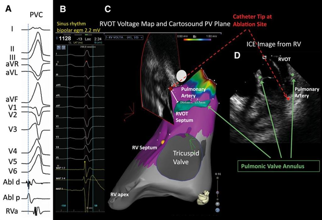 Imagen: Un ejemplo del uso de la EcoCardiografía Intracardíaca (ICE) para investigar la fibrilación auricular (Fotografía cortesía de los AHA Journals).
