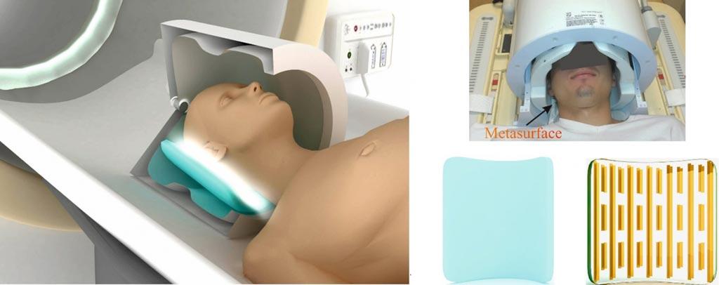 Imagen: Un paciente dentro de un equipo de resonancia magnética con hileras de metasuperficie-realzados con bobinas (Fotografía cortesía de la Universidad ITMO).