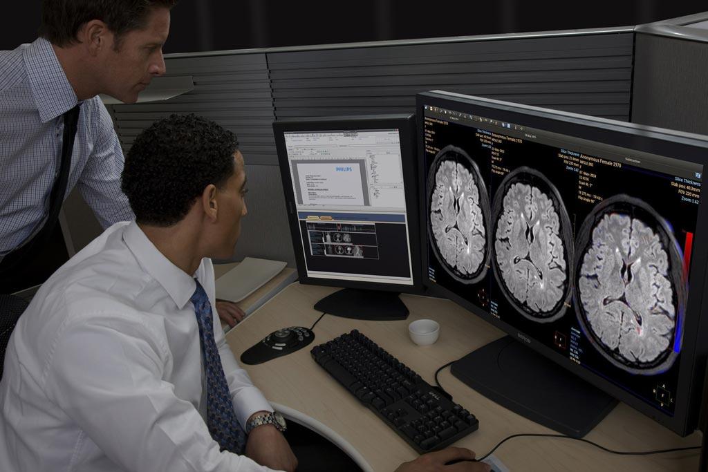 Imagen: La Imagenología Cerebral Longitudinal (LoBI) es y la última aplicación clínica del portal IntelliSpace 9.0 aprobada para distribución en los Estados Unidos (Fotografía cortesía de Philips Healthcare).