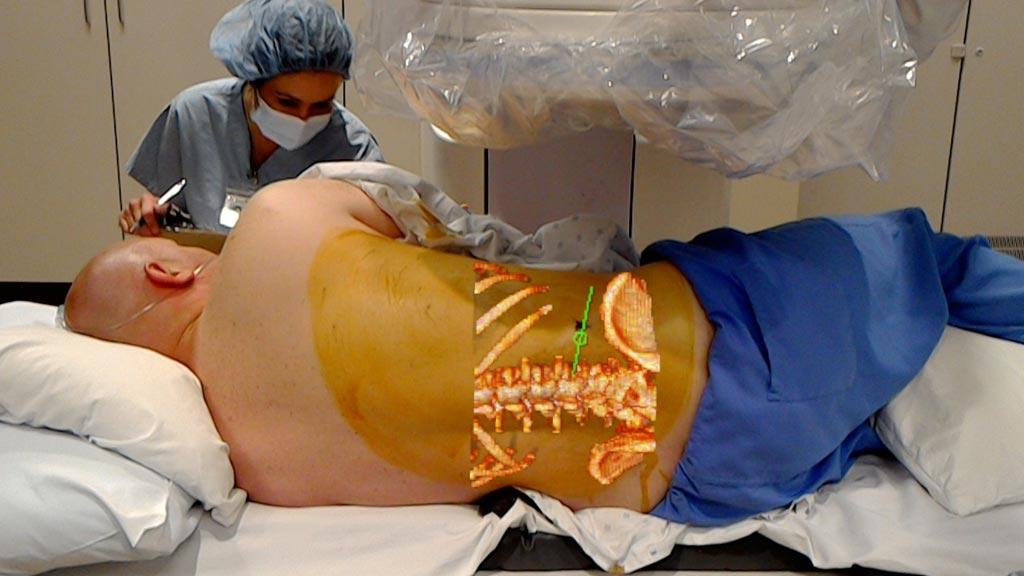Imagen: Un paciente a quien le realizan un procedimiento APLD con la ayuda de la tecnología de realidad aumentada OpenSight (Fotografía cortesía de Novorad).