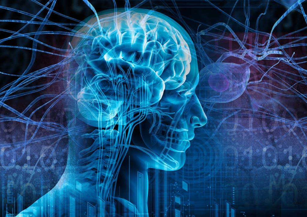 Imagen: Un nuevo estudio muestra que el aprendizaje de tareas físicas, mientras se escucha música, puede cambiar la estructura del cerebro (Fotografía cortesía de Shutterstock).