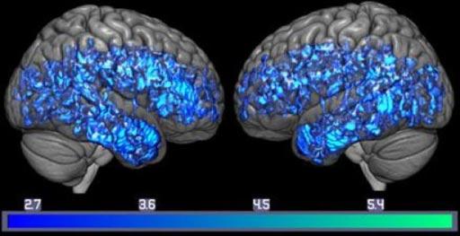 Imagen: Un cerebro con una disminución de los transportadores de serotonina (azul) para todo el grupo de deterioro cognitivo leve, y un examen cerebral de todo el grupo control sano (Fotografía cortesía del Laboratorio de Gwenn Smith).
