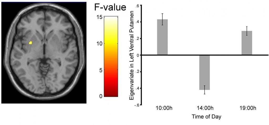 Imagen: La imagen de RMf muestra que la activación de la región cerebral de procesamiento de recompensas alcanza un pico tanto por la mañana como por la noche, pero cae a las dos de la tarde. (Fotografía cortesía de Byrne et al., The Journal of Neuroscience 2017).