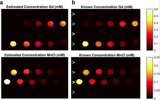 Imagen: Mapas de la concentración estimada de gadolinio y manganeso de la técnica DC-MRF (Fotografía cortesía de la Facultad de Medicina CWRU).