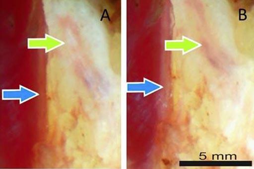 Imagen: Un nuevo estudio describe como la polarización de la luz ayuda a identificar el tejido nervioso